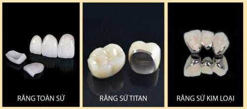 lựa chọn loại răng sứ muốn phục hình