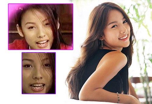 Lee Hyori là minh chứng cho thấy bọc răng sứ có thể giúp bản thân tự tin về ngoại hình hơn rất nhiều.