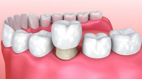 Răng sứ sau khi bọc phải sát khít viền nướu, không bị cộm vướng.