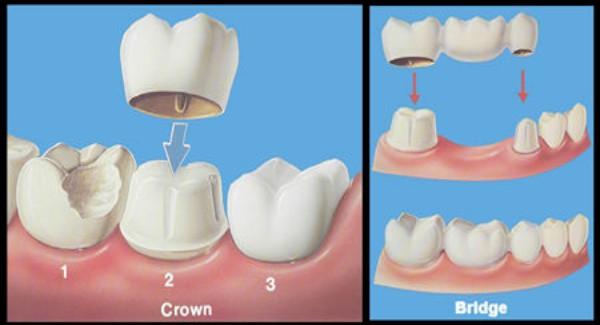 Lắp răng sứ không chuẩn khiến gây cảm giác cộm cứng
