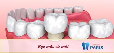Bọc mão sứ mới - Cách khắc phục hiện tượng chảy máu chân răng sứ hiệu quả