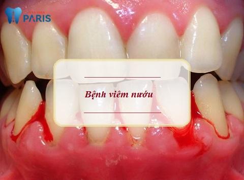 Bọc răng sứ bị chảy máu có thể do bệnh viêm nướu