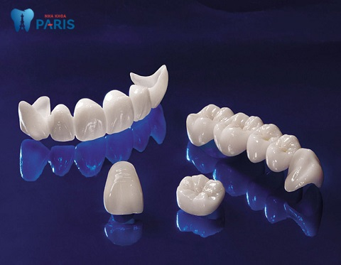 Răng toàn sứ - Dòng răng sứ mang lại tính thẩm mỹ cao, không đen viền nướu