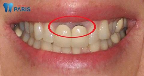 Bọc răng sứ bị đen viền nướu nguyên nhân do đâu?