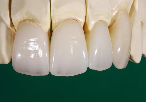 răng sứ ceramill có tốt không