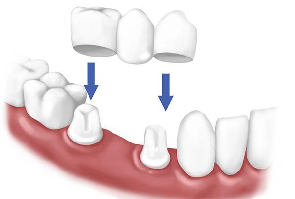 răng sứ cercon có mấy loại, răng sứ cercon và cercon ht