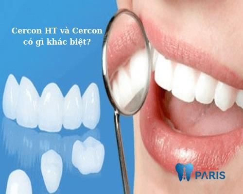 răng sứ cercon ht có tốt không