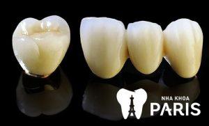 Giải đáp: Lời đồn đoán về răng sứ titan có bị đen không?