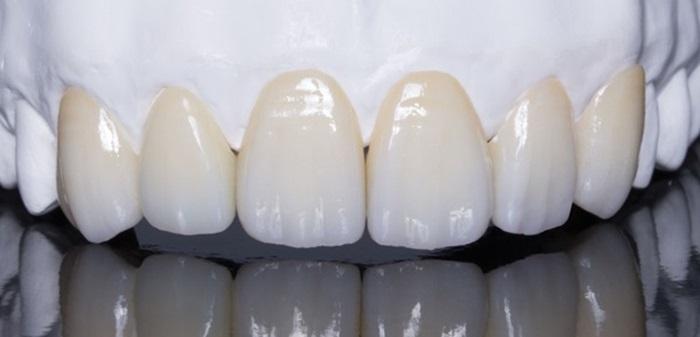 Răng toàn sứ Roland