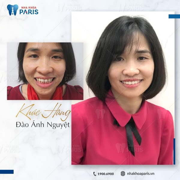 Chị Đào Ánh Nguyệt thay đổi ngoại mục khi niềng răng tại nha khoa Paris