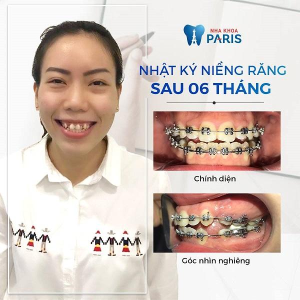 Niềng răng khắc phục răng khấp khểnh tại nha khoa Paris