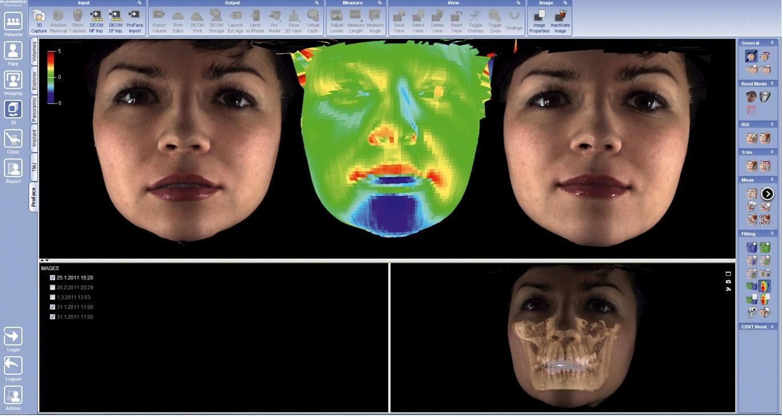 Phần mềm Scan Face 3D cho phép xem trước kết quả