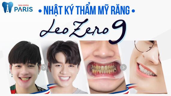 Nhật ký Bọc Răng Sứ - Ca Sĩ LEO nhóm ZERO 9