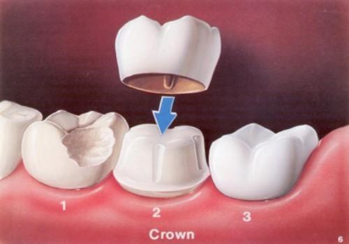 Bọc răng hàm có ảnh hưởng gì không?