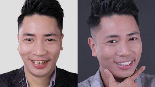 Đức lộc bọc răng sứ răng hàm