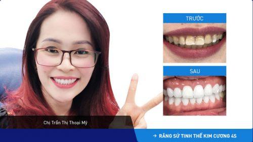 khách hàng bọc răng sứ cho răng hàm