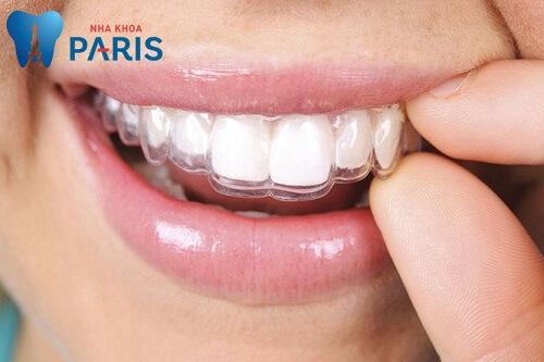 niềng răng du học bằng khay trong suốt