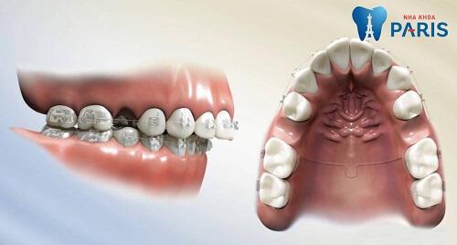 niềng răng có cần nhổ răng không
