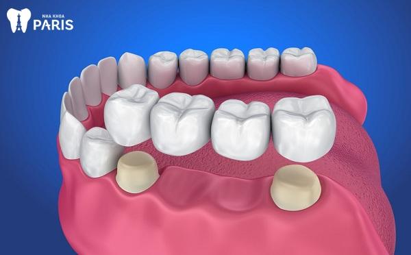 Làm cầu răng có tốt không?