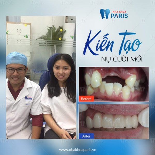 Độ bền của phương pháp làm cầu răng tương đối cao.