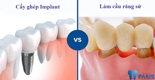 Nên làm cầu răng hay implant.