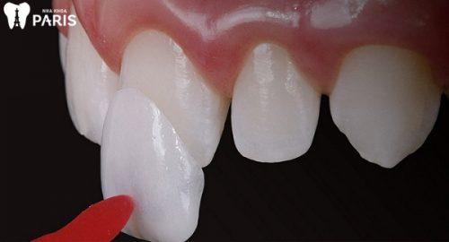 chỉnh răng thưa mất bao nhiêu tiền