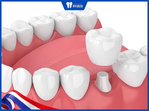 bọc răng sứ khắc phục khớp cắn chéo