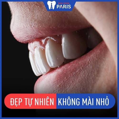 trường hợp nào có thể bọc răng không mài