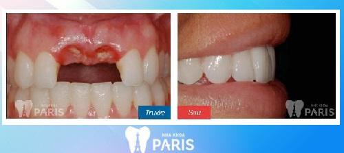 Làm cầu răng sứ cho trường hợp bị mất hai răng cửa.