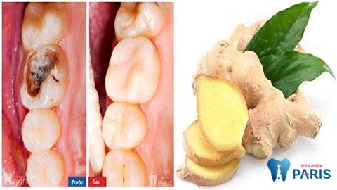 Chữa sâu răng với gừng tươi tại nha là biện pháp đơn giản, tiết kiệm chi phí