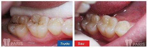 Răng sau khi trám sẽ được phục hồi cả tính thẩm mỹ lẫn chức năng ăn nhai