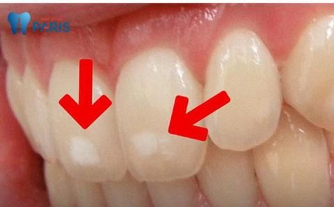 Sâu răng giai đoạn nhẹ