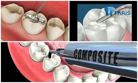 Cách chữa sâu răng giai đoạn nhẹ