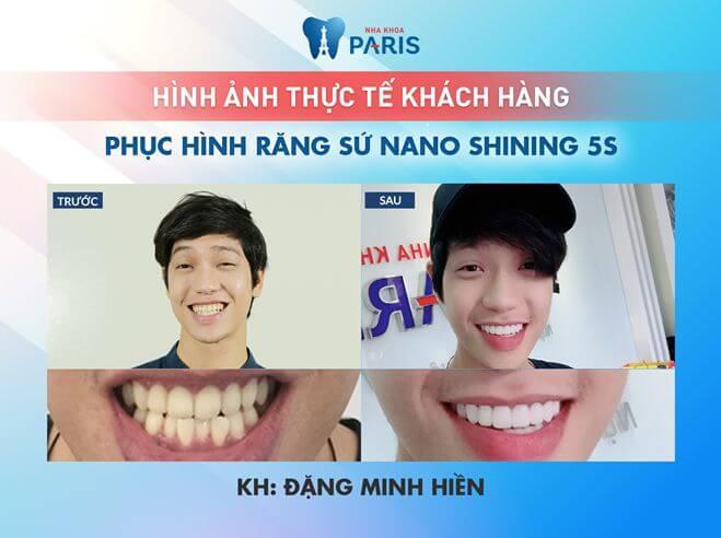 """""""Hàm răng của tôi giờ không còn nhấp nhô như trước nữa. Bọc răng sứ giúp tôi tự tin khi nói chuyện, giao tiếp và cười khi diễn xuất trước máy quay""""- Diễn viên Hiền Sến chia sẻ sau khi bọc răng sứ tại Nha khoa Paris."""