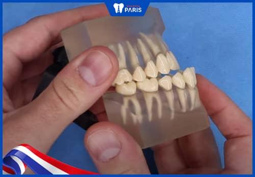 dối loạn chuyển động xương hàm dưới do khớp cắn ngược