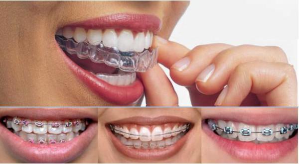 Niềng răng cho những trường hợp răng lệch lạc