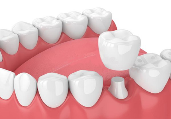 Bọc răng sứ cho những trường hợp răng vỡ mẻ