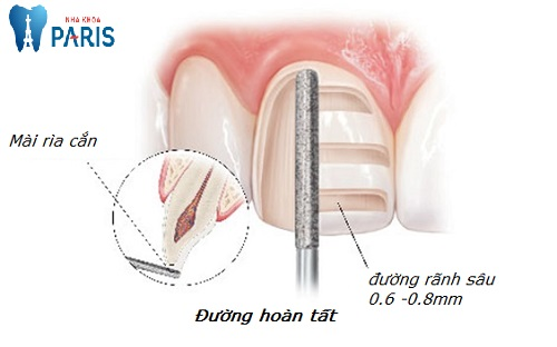 kỹ thuật mài răng