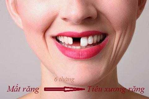 làm cầu răng sứ được bao lâu
