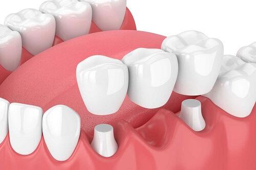 Làm cầu răng sứ titan là gì?