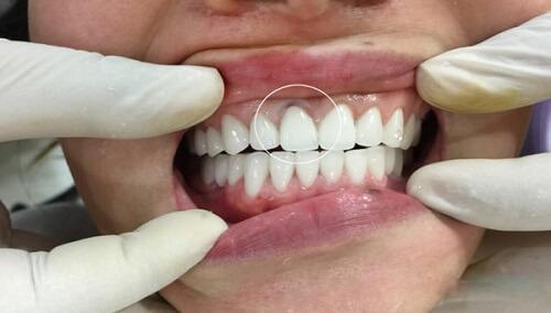Làm cầu răng sứ sử dụng khoảng 5-15 năm