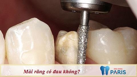 Mài răng có đau không là thắc mắc của nhiều khách hàng
