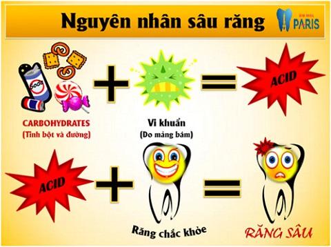 Nguyên nhân sâu răng được xác định là do vi khuẩn gây ra