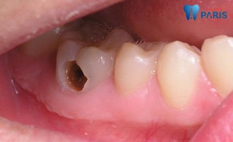 Chăm sóc răng miệng không đúng cách dễ gây bệnh lý sâu răng