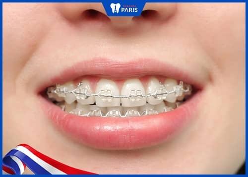 nhổ răng để niềng có ảnh hưởng gì không