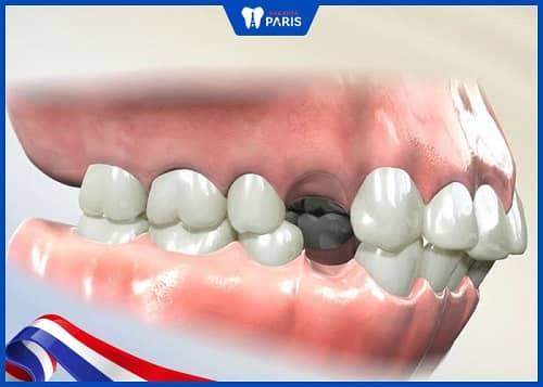 nhổ răng số 4 để chỉnh nha