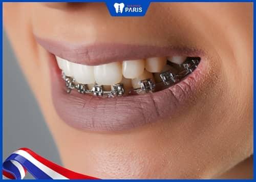 niềng răng 1 hàm là như thế nào