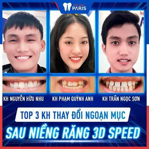 niềng răng 1 hàm mất bao lâu