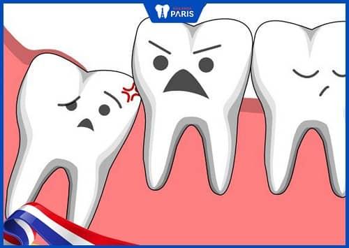 niềng răng có bắt buộc nhổ răng khôn không