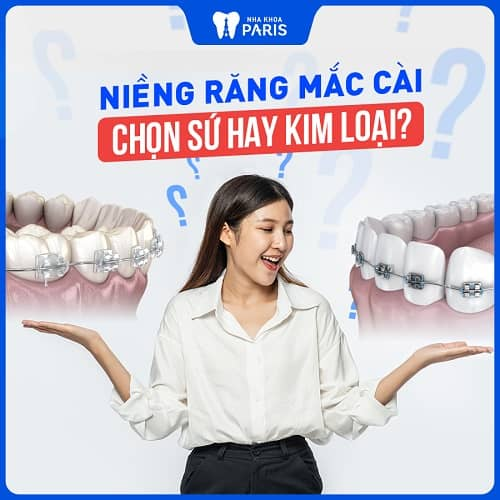 niềng 2 răng cửa có được không